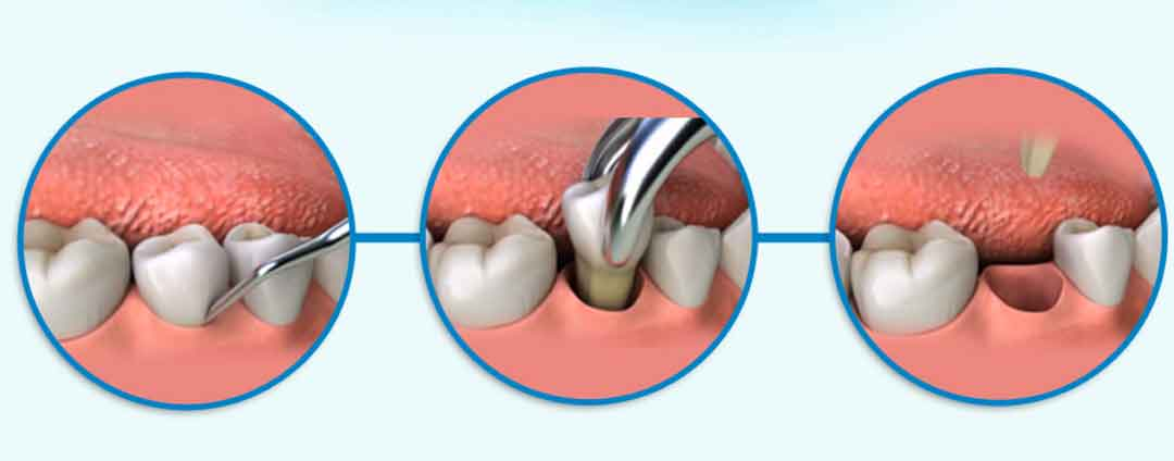 Tooth Extraction Procedure