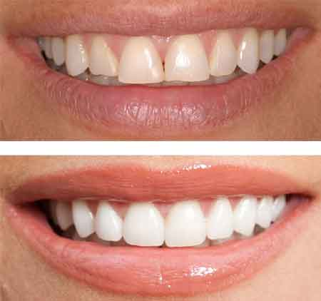 Before & After Teeth Shaping