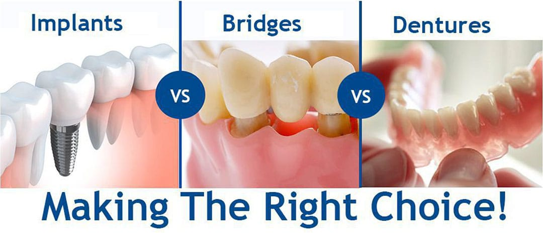 Implants, Bridges or Dentures