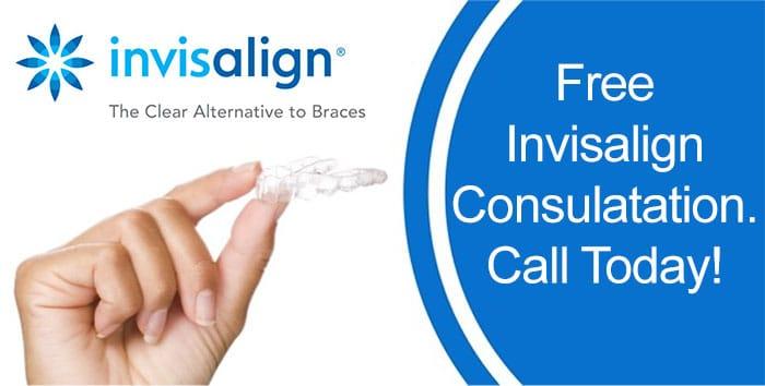 Free Invisalign Consultation